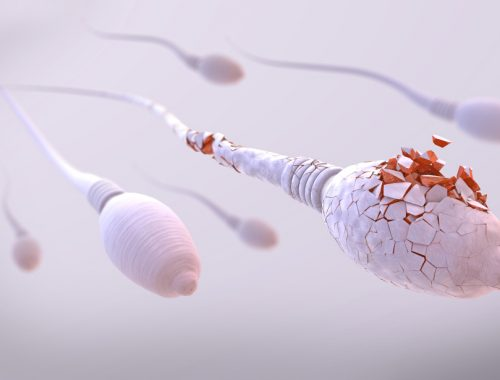 sperm cell damage