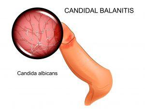 candidal balanitis on glans