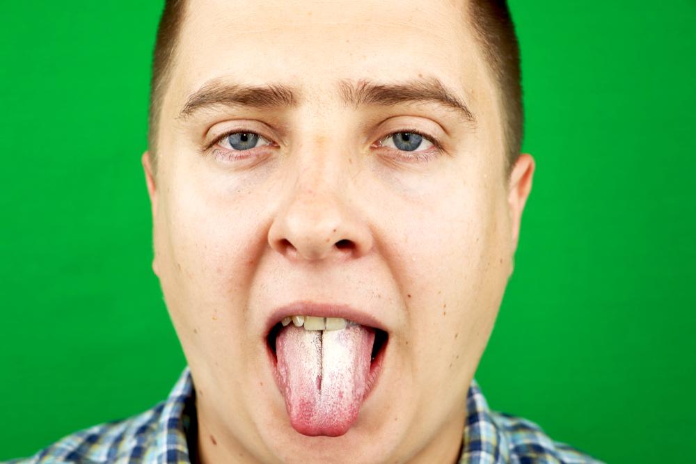 man oral thrush