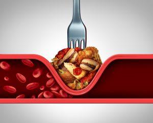 trans fat food clogging veins