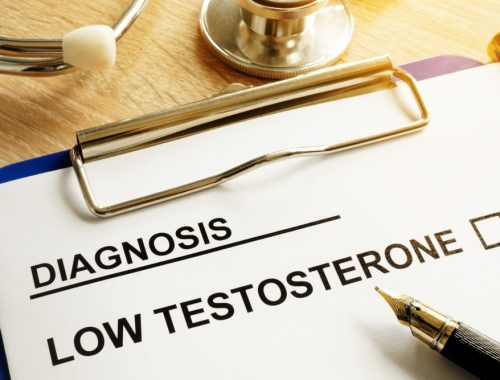 Low testosterone diagnosis